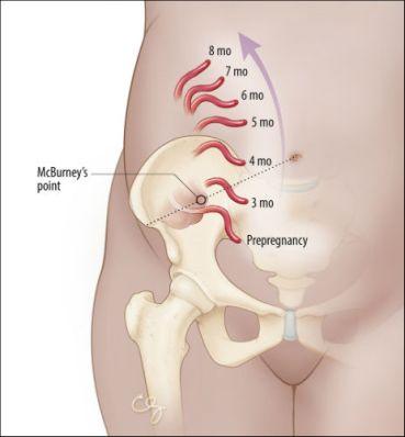 Χειρουργικές παθήσεις στην εγκυμοσύνη